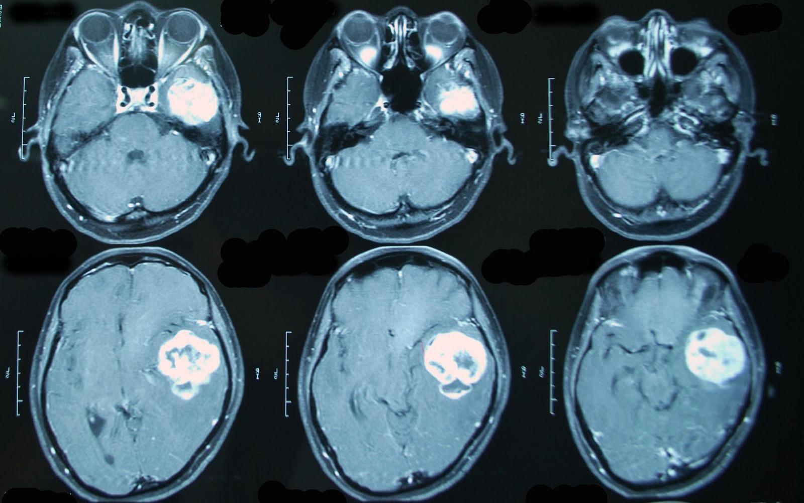 Пример МРТ снимка головного мозга с контрастом