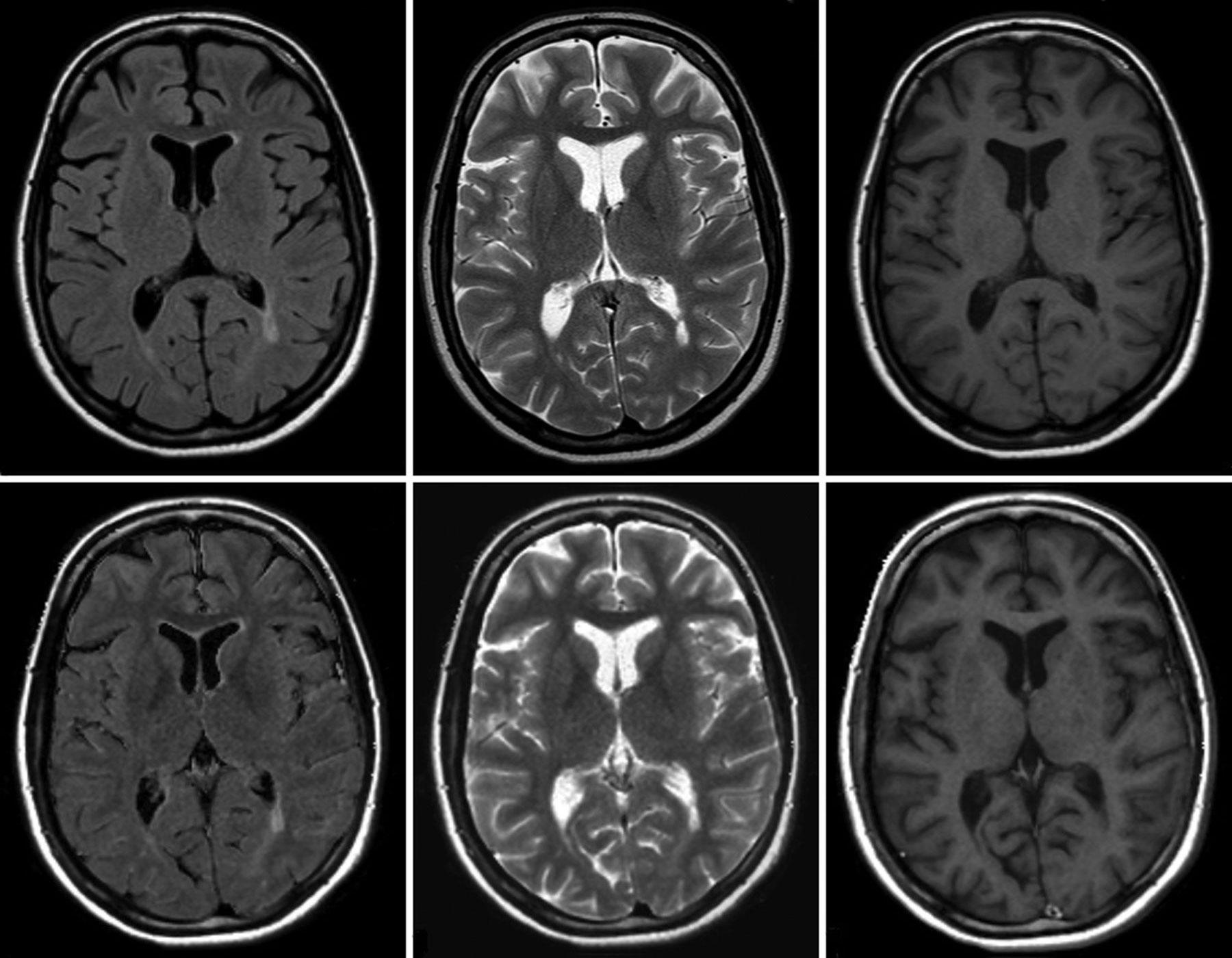 Снимок КТ головного мозга
