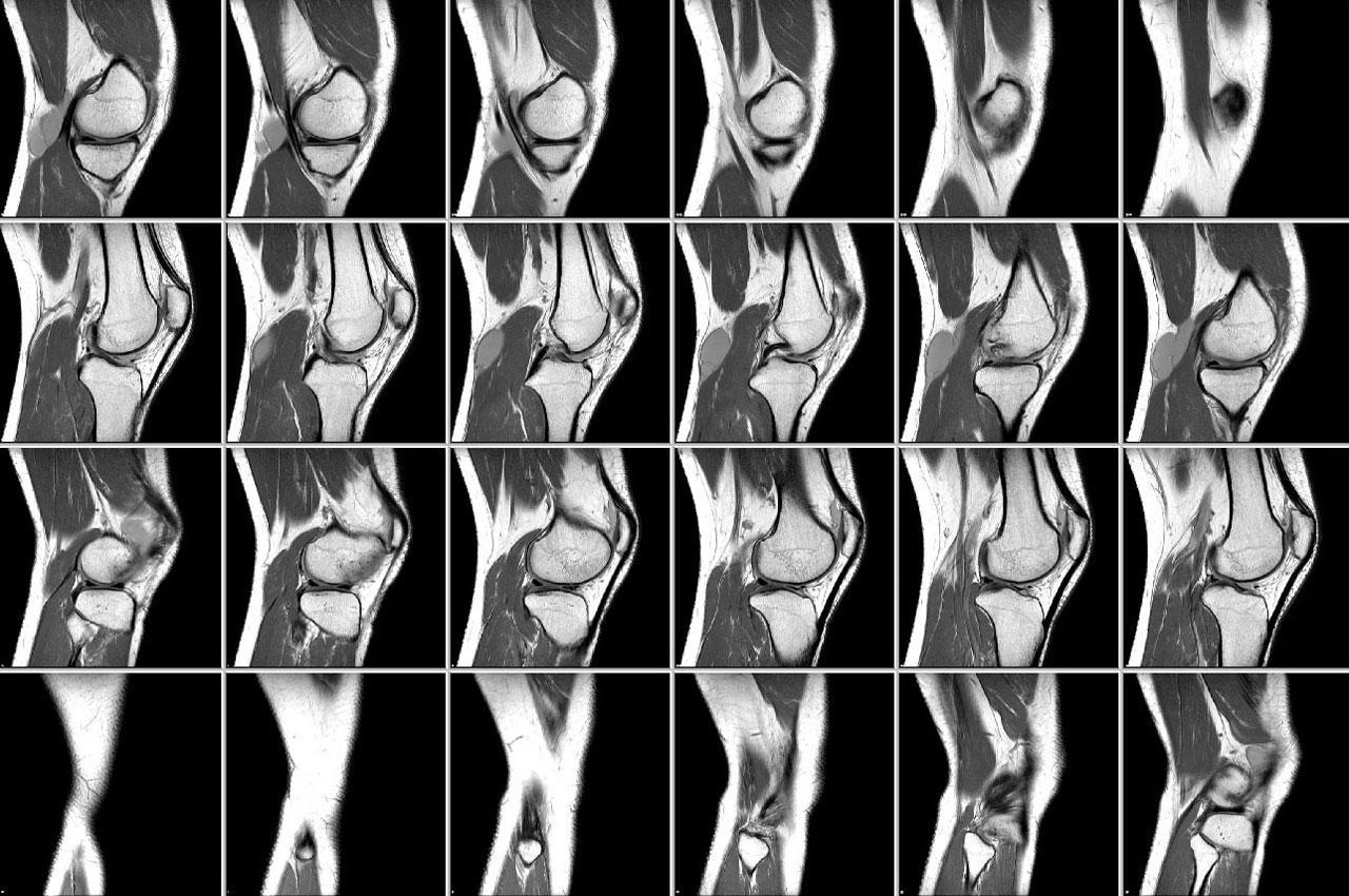 Снимок КТ коленного сустава