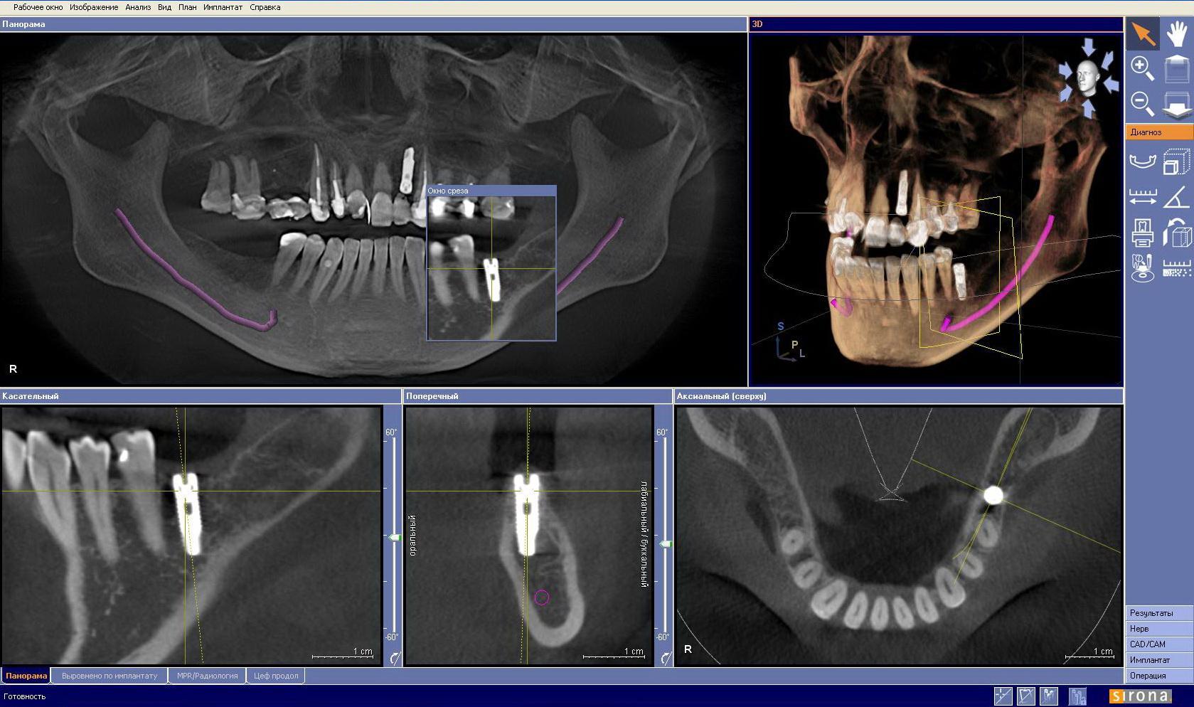 3D снимок КТ зубов