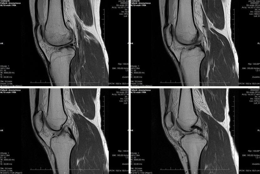 Снимок МРТ коленного сустава
