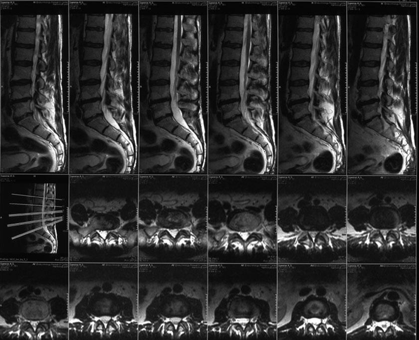 МРТ снимок копчика