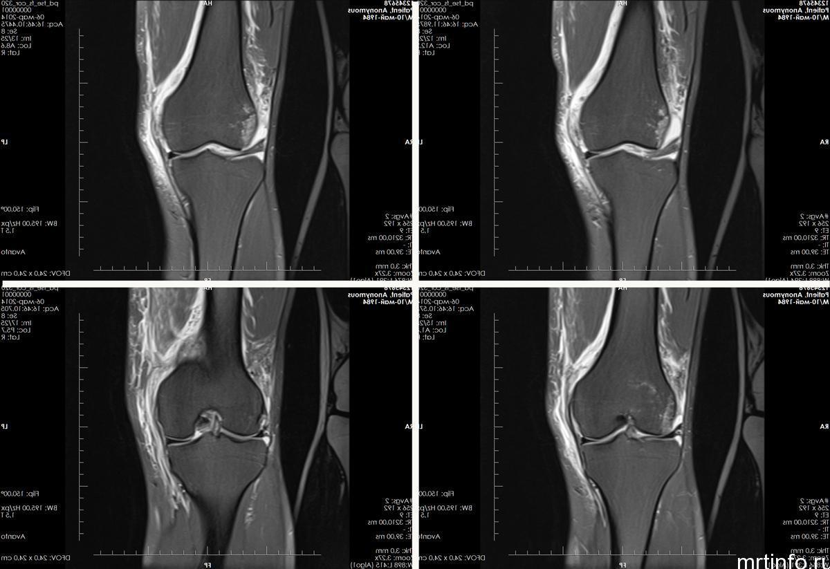 Снимок МРТ локтевого сустава