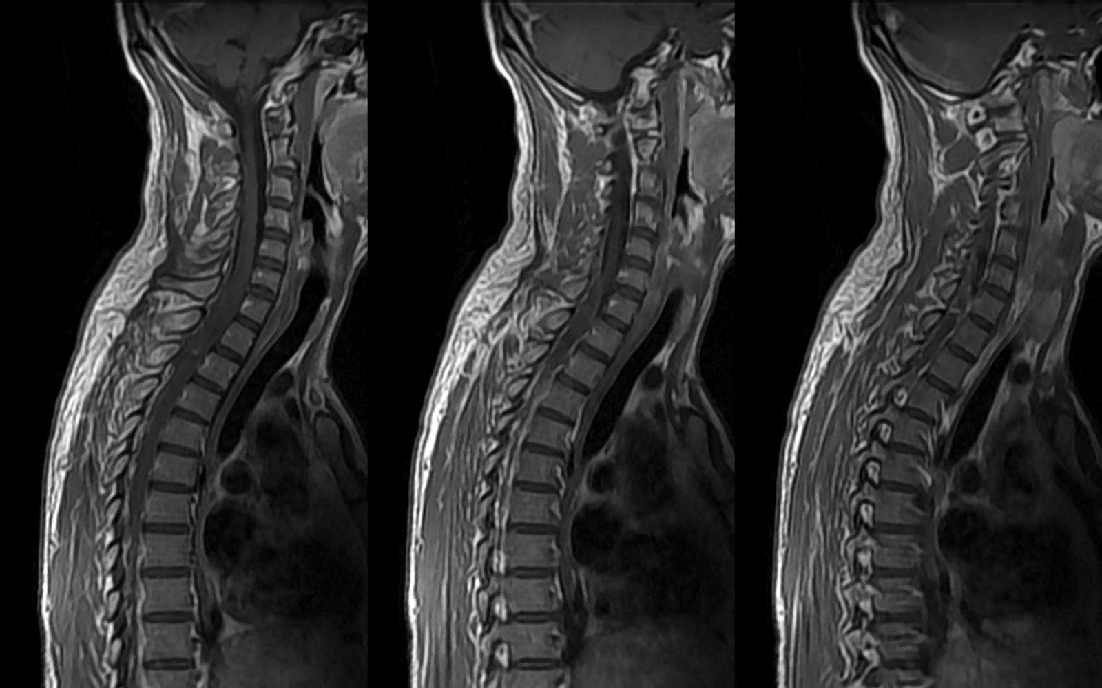 Снимок МРТ шейного отдела позвоночника