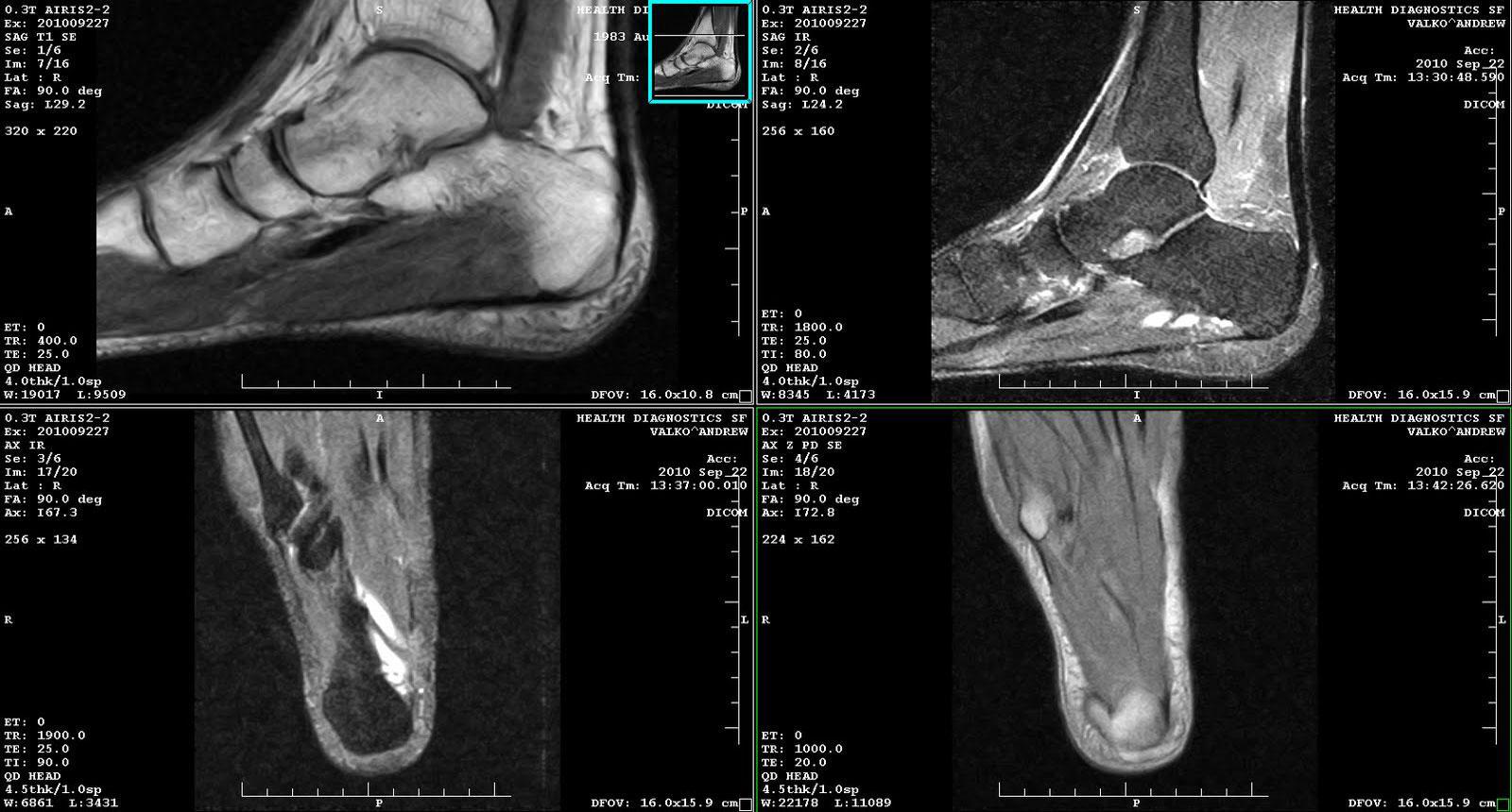 Снимок МРТ стопы