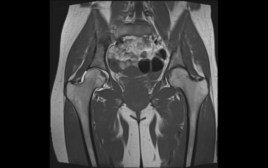 Снимок МРТ тазобедренного сустава